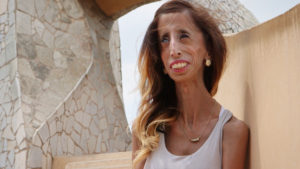 Global Speaker, Lizzie Velasquez, stops to pose with a fan during a trip to Barcelona, Spain in ÒA Brave Heart: The Lizzie Velasquez Story.Ó (Photo Credit: Women Rising)